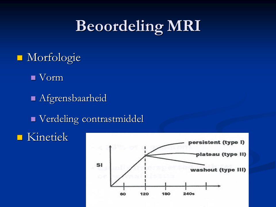 Beoordeling MRI Morfologie Kinetiek Vorm Afgrensbaarheid