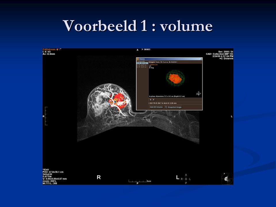 Voorbeeld 1 : volume