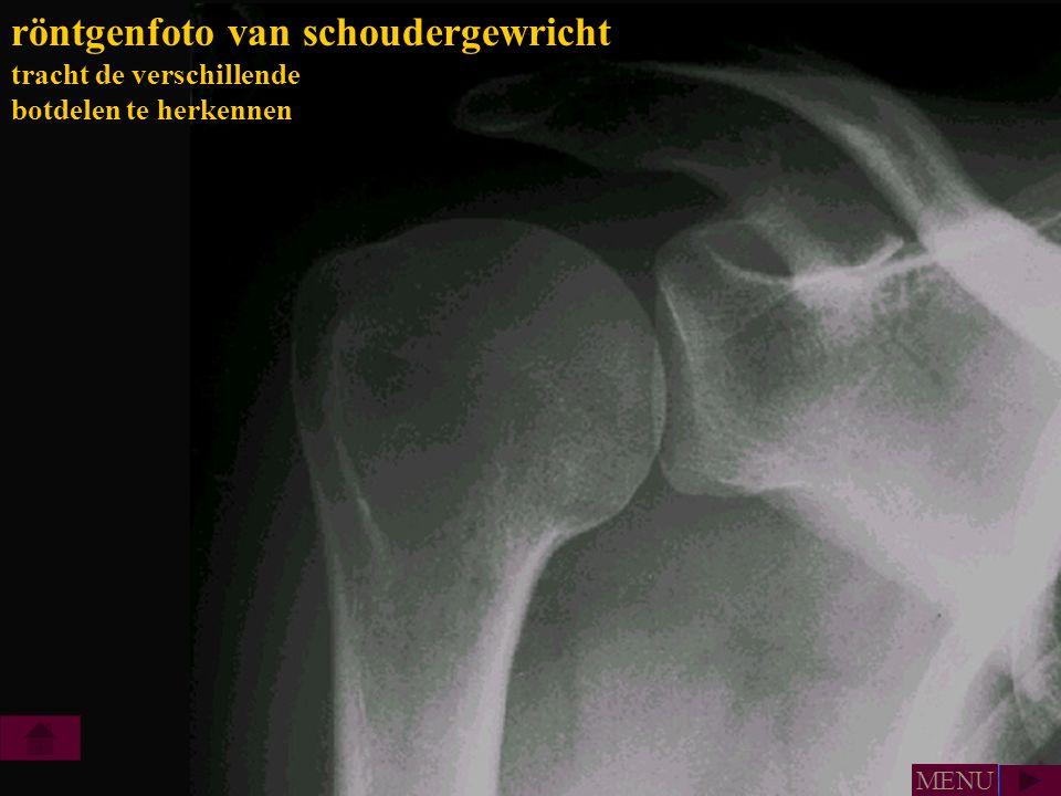 röntgenfoto van schoudergewricht