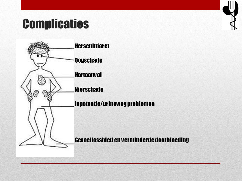Complicaties Herseninfarct Oogschade Hartaanval Nierschade