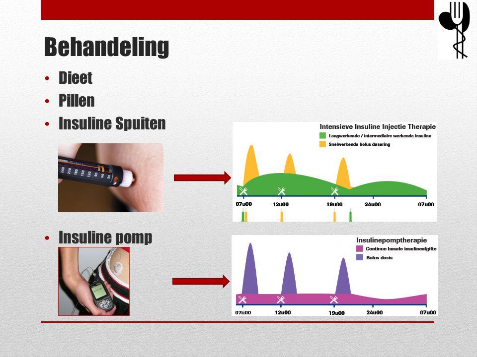 Behandeling Dieet Pillen Insuline Spuiten Insuline pomp