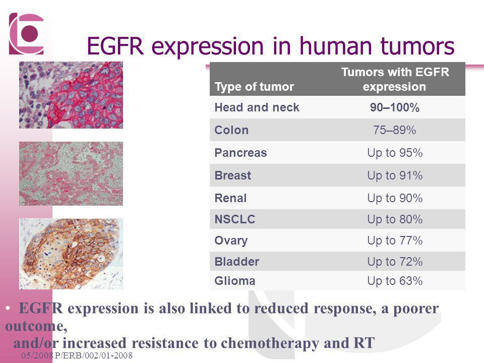EGFR expression in human tumors
