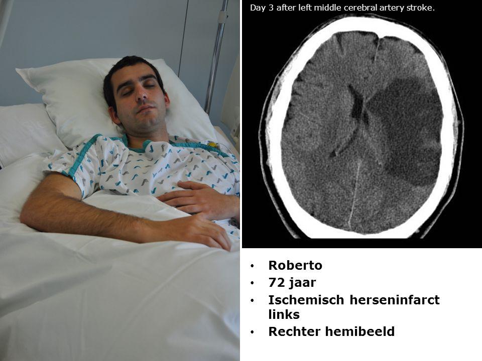 Ischemisch herseninfarct links Rechter hemibeeld