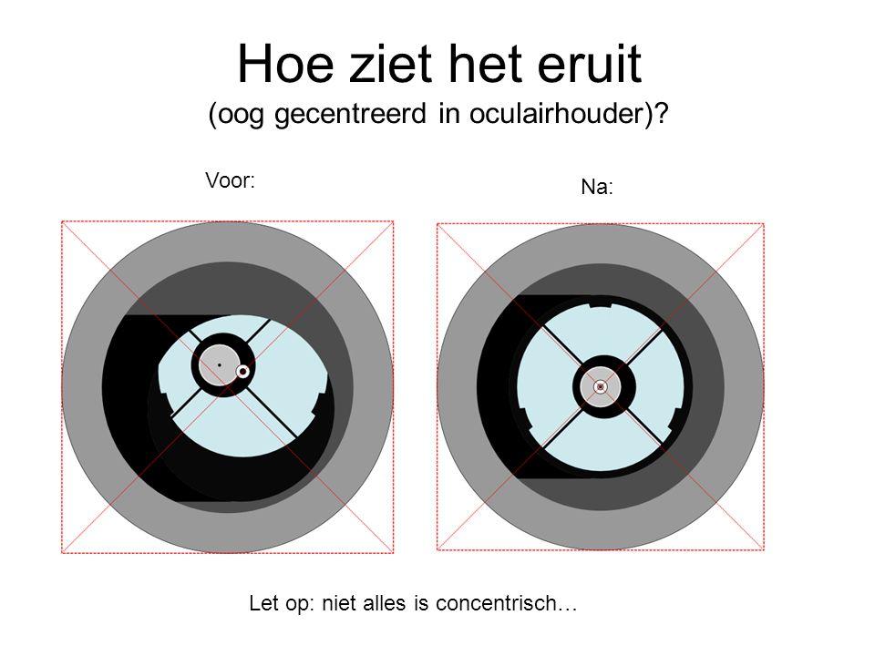 Hoe ziet het eruit (oog gecentreerd in oculairhouder)