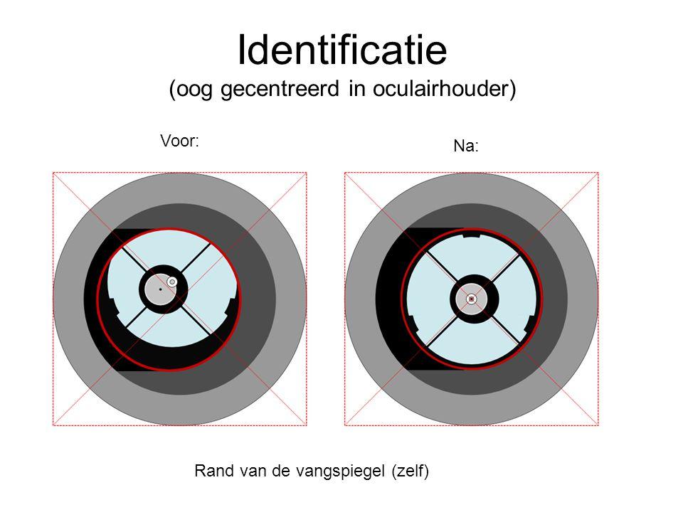 Identificatie (oog gecentreerd in oculairhouder)