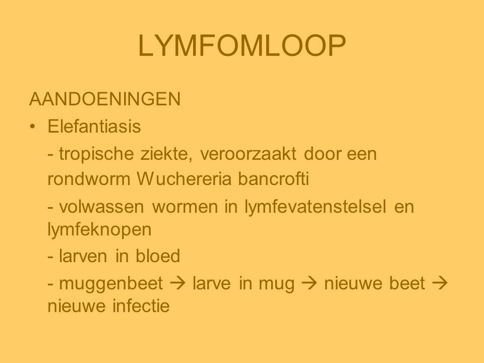 LYMFOMLOOP AANDOENINGEN Elefantiasis