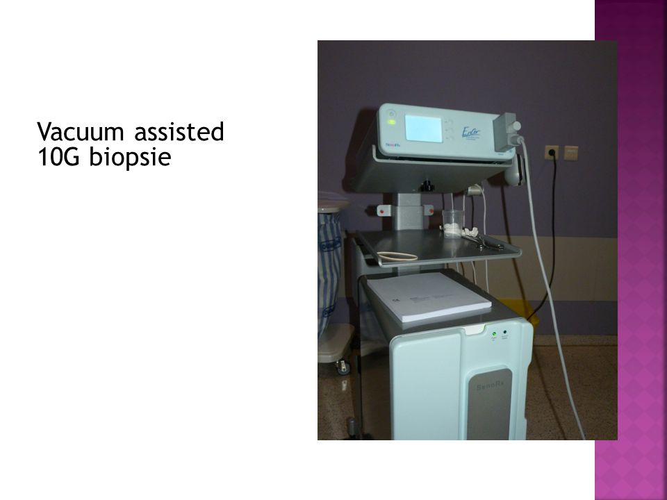 Vacuum assisted 10G biopsie