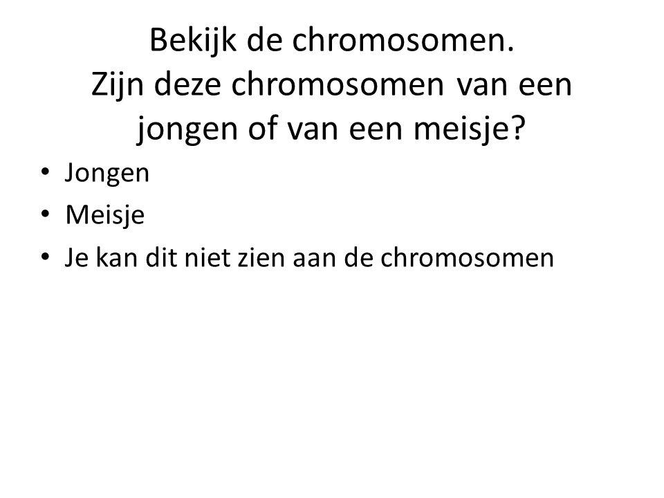 Bekijk de chromosomen. Zijn deze chromosomen van een jongen of van een meisje