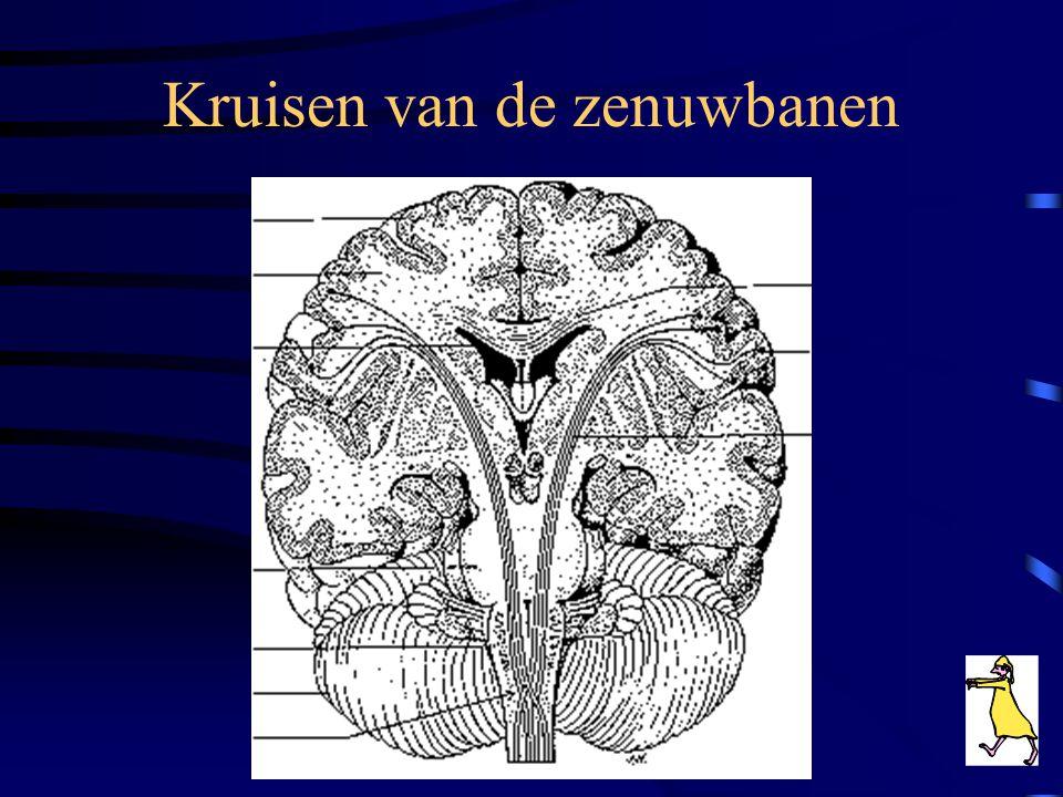 Kruisen van de zenuwbanen