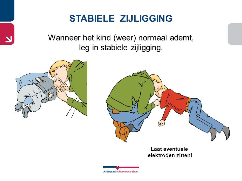 STABIELE ZIJLIGGING Wanneer het kind (weer) normaal ademt,