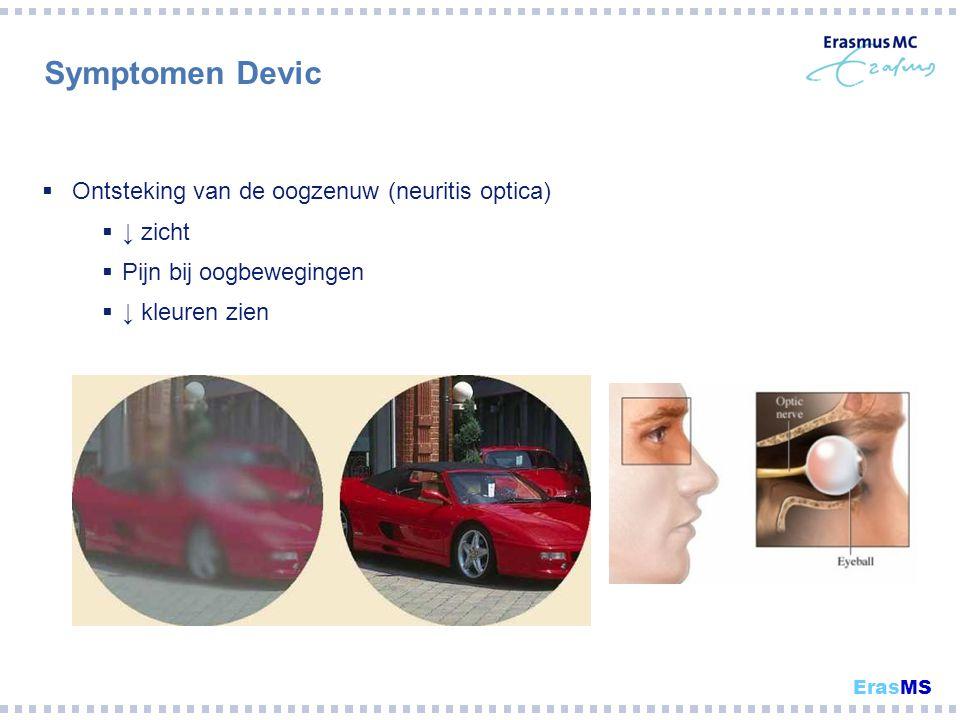 Symptomen Devic Ontsteking van de oogzenuw (neuritis optica) ↓ zicht