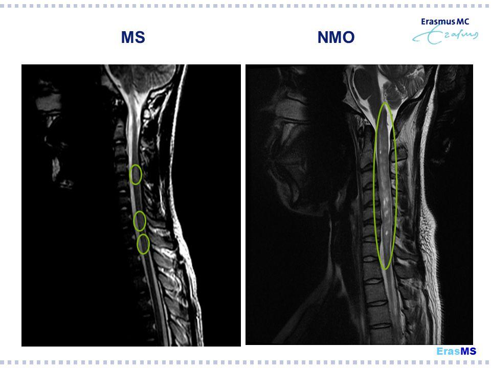 MS NMO MS = meestal 1 segment ErasMS