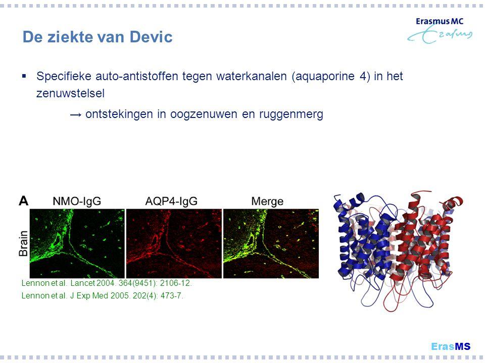 De ziekte van Devic Specifieke auto-antistoffen tegen waterkanalen (aquaporine 4) in het zenuwstelsel.