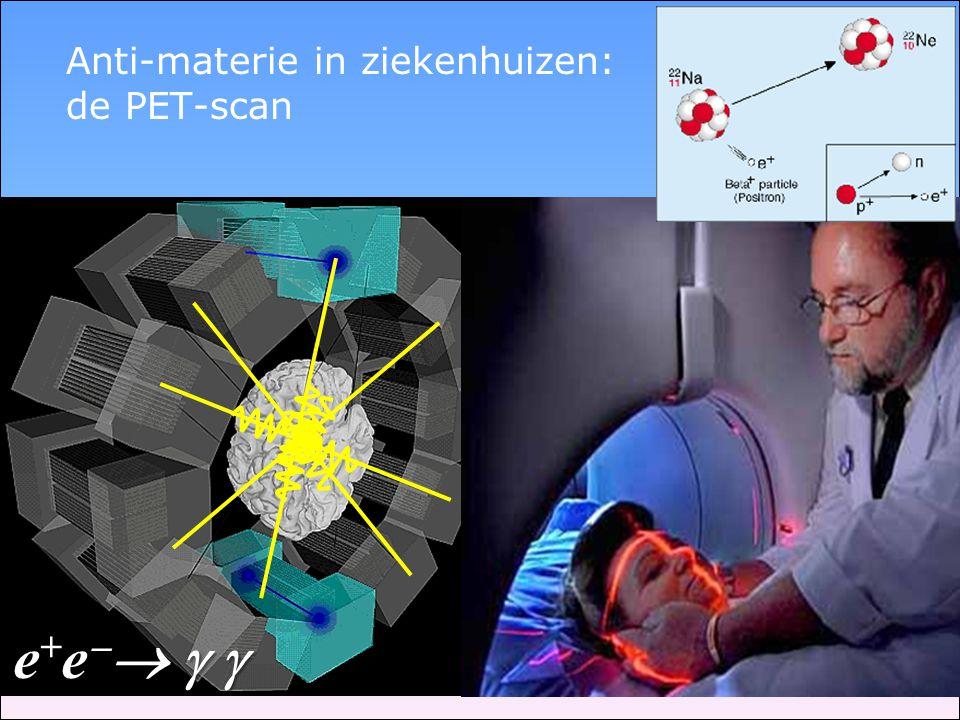 Anti-materie in ziekenhuizen: de PET-scan
