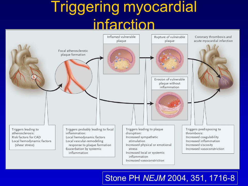 Triggering myocardial infarction