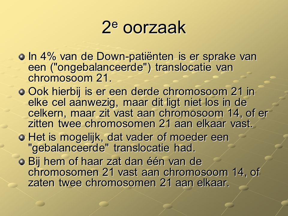 2e oorzaak In 4% van de Down-patiënten is er sprake van een ( ongebalanceerde ) translocatie van chromosoom 21.