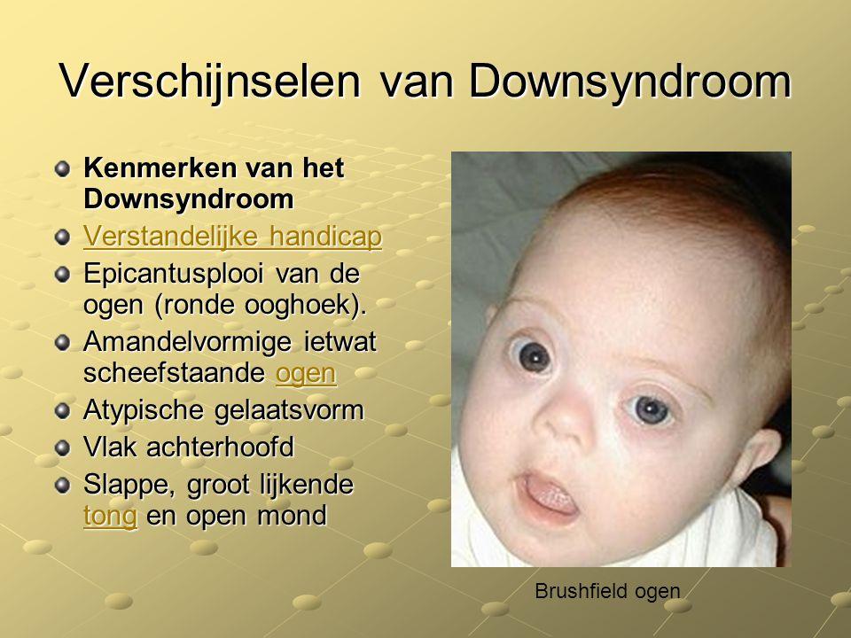 Verschijnselen van Downsyndroom