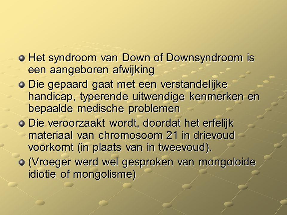 Het syndroom van Down of Downsyndroom is een aangeboren afwijking