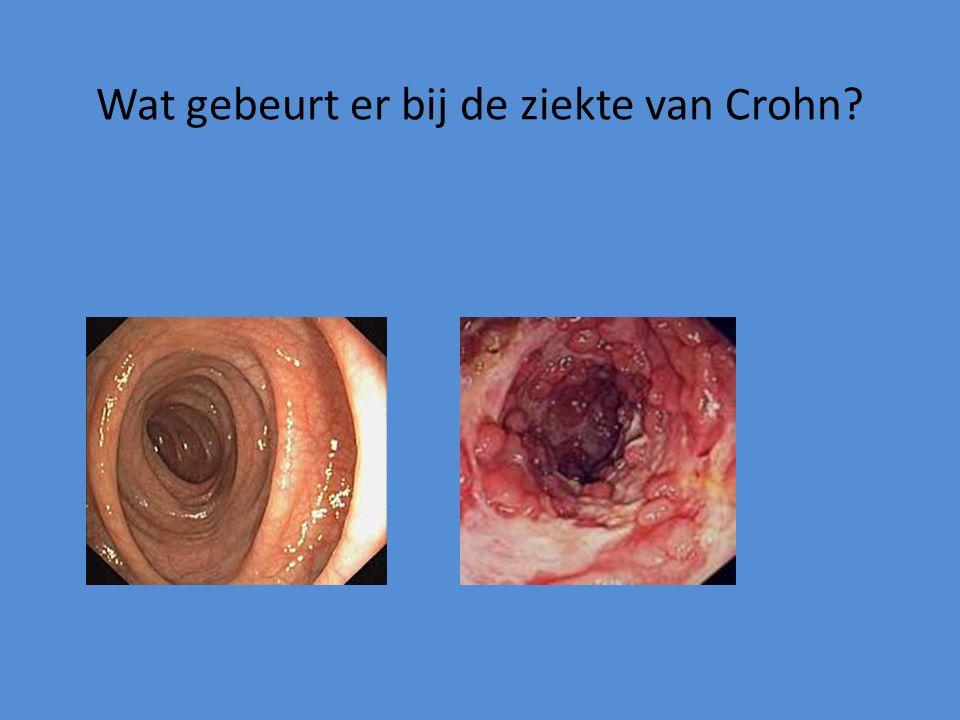 Wat gebeurt er bij de ziekte van Crohn