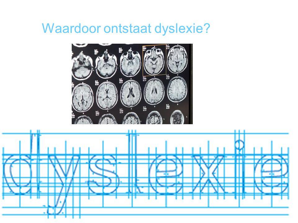 Waardoor ontstaat dyslexie