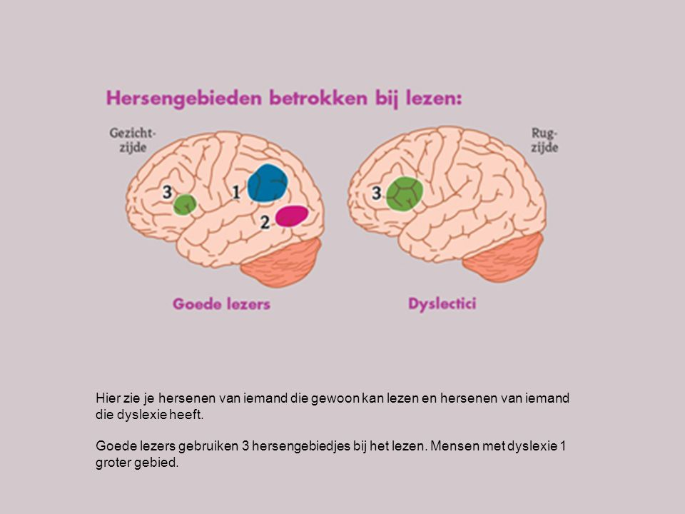 Hier zie je hersenen van iemand die gewoon kan lezen en hersenen van iemand die dyslexie heeft.