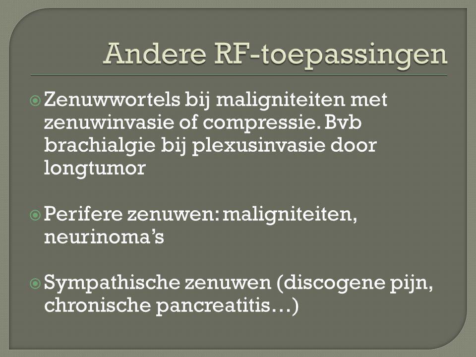 Zenuwwortels bij maligniteiten met zenuwinvasie of compressie