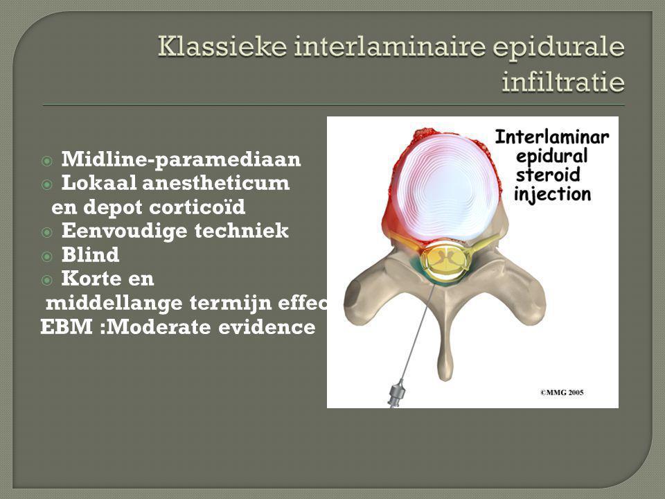 Midline-paramediaan Lokaal anestheticum. en depot corticoïd. Eenvoudige techniek. Blind. Korte en.