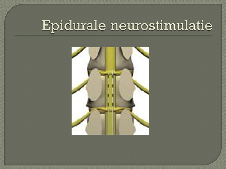 Epidurale neurostimulatie