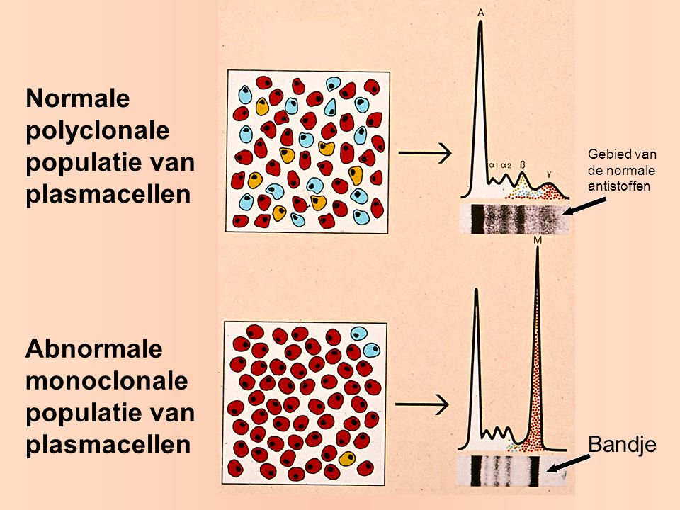 Normale polyclonale populatie van plasmacellen