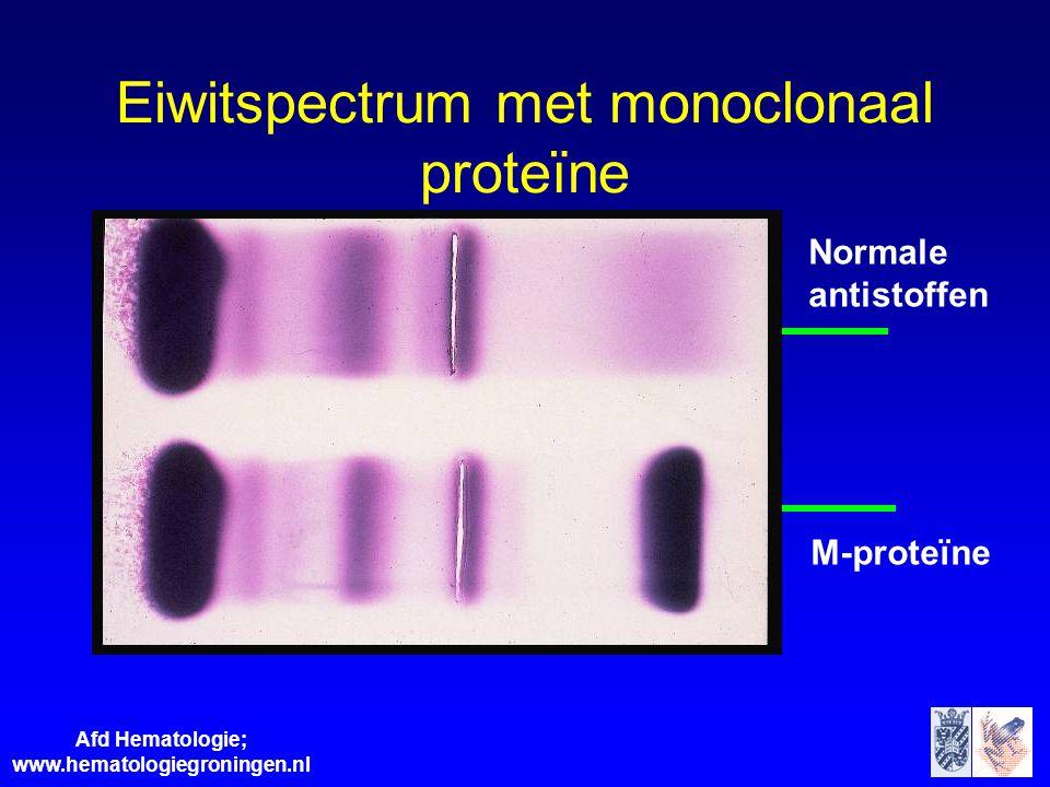 Eiwitspectrum met monoclonaal proteïne