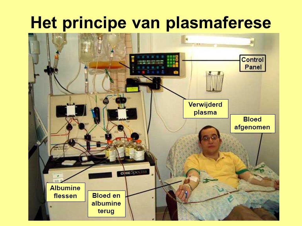 Het principe van plasmaferese
