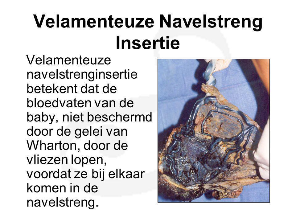 Velamenteuze Navelstreng Insertie