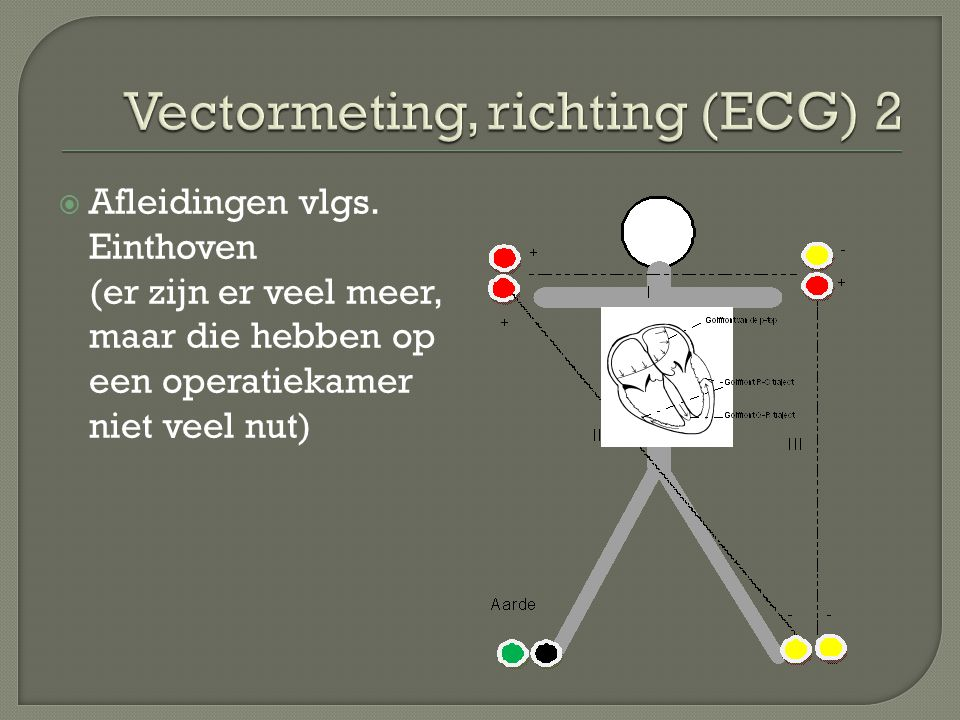 Vectormeting, richting (ECG) 2