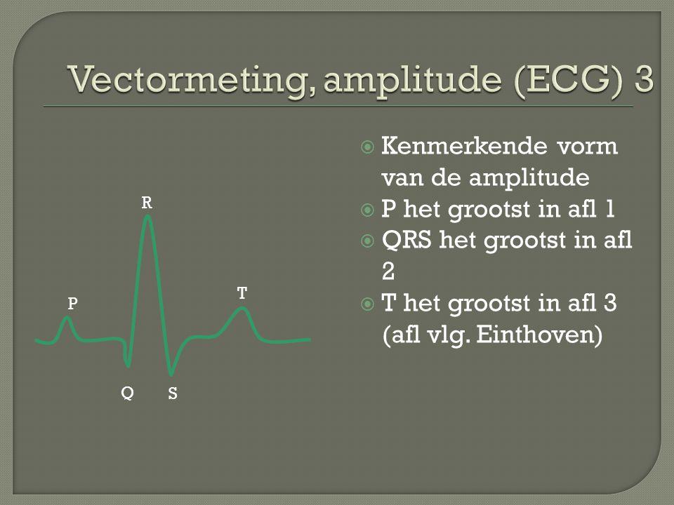 Vectormeting, amplitude (ECG) 3
