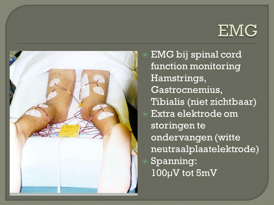 EMG EMG bij spinal cord function monitoring Hamstrings, Gastrocnemius, Tibialis (niet zichtbaar)