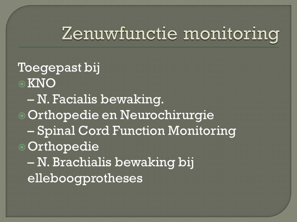 Zenuwfunctie monitoring