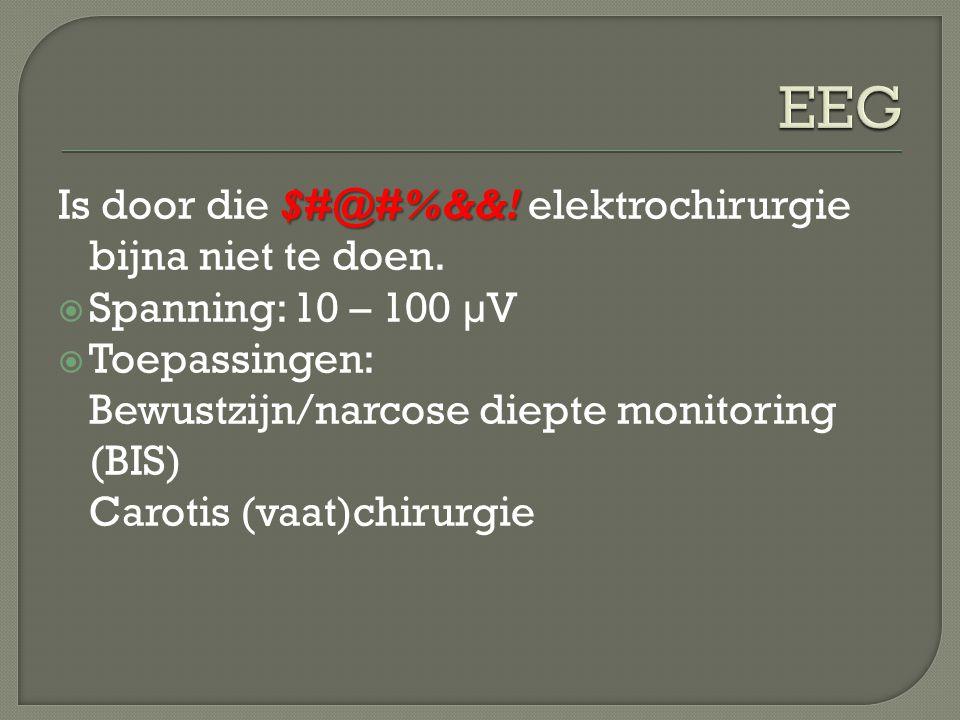 EEG Is door die $#@#%&&! elektrochirurgie bijna niet te doen.