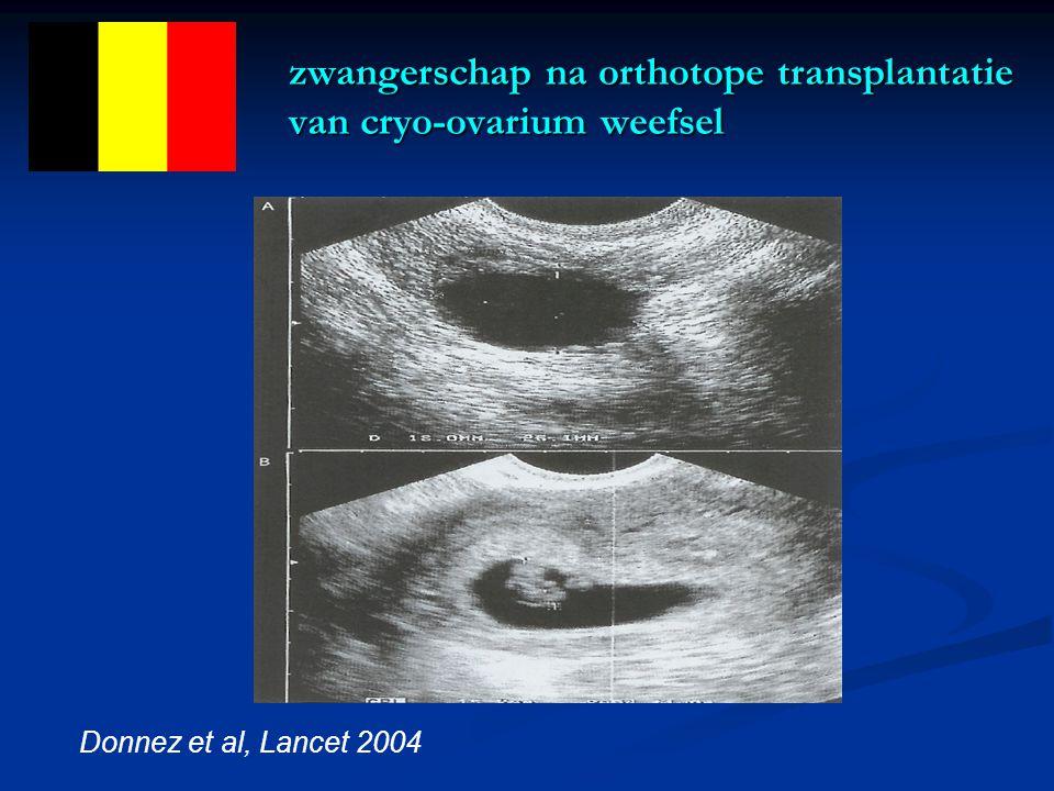 zwangerschap na orthotope transplantatie van cryo-ovarium weefsel