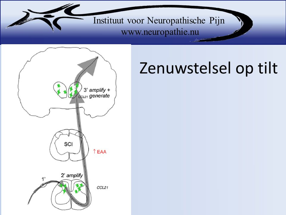 Zenuwstelsel op tilt A massive release of glutamate at the SCI lesion