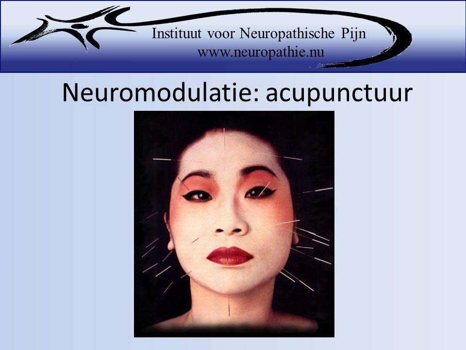 Neuromodulatie: acupunctuur