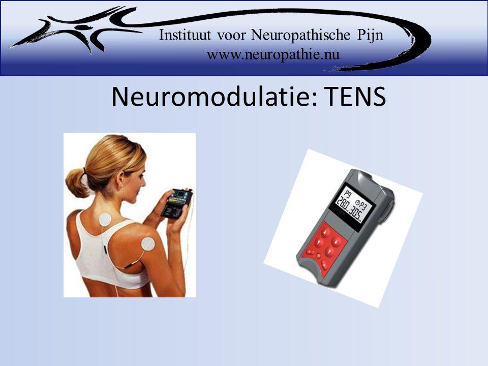 Neuromodulatie: TENS