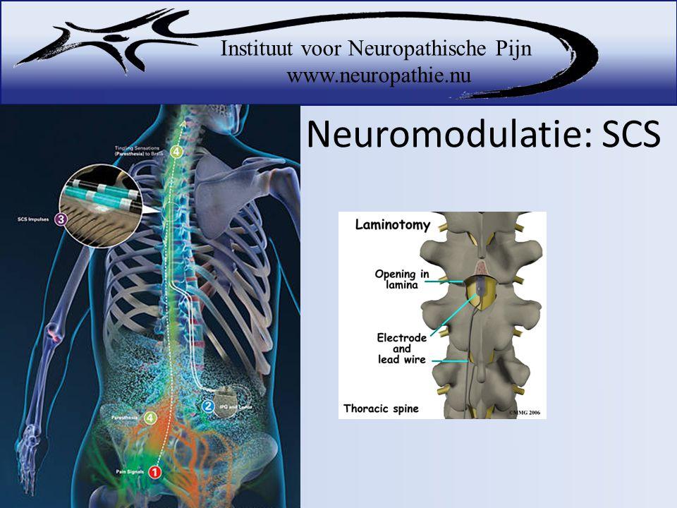 Neuromodulatie: SCS