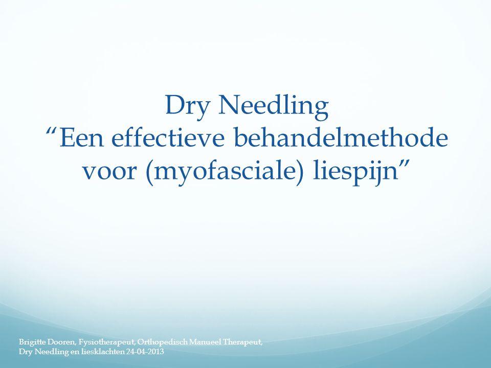 Dry Needling Een effectieve behandelmethode voor (myofasciale) liespijn