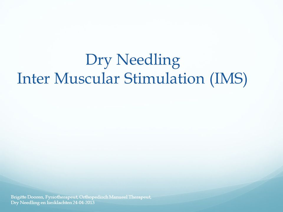 Dry Needling Inter Muscular Stimulation (IMS)