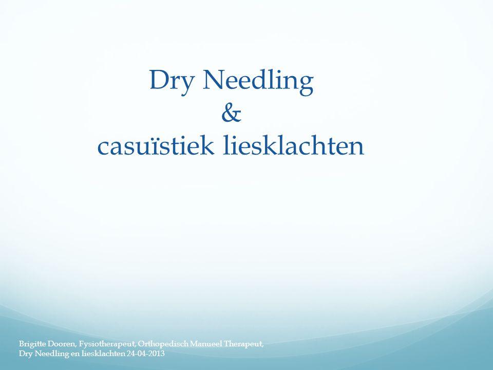Dry Needling & casuïstiek liesklachten