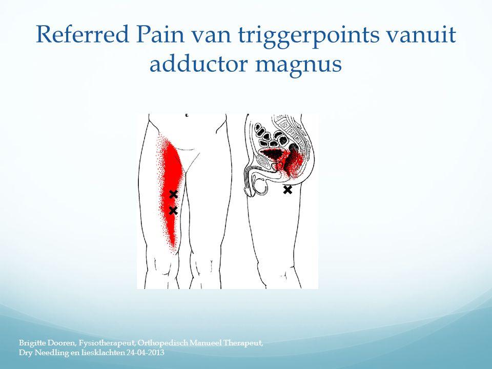 Referred Pain van triggerpoints vanuit adductor magnus