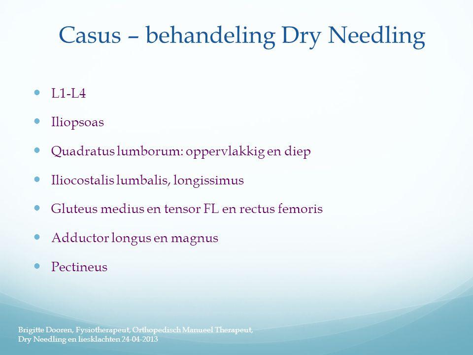 Casus – behandeling Dry Needling