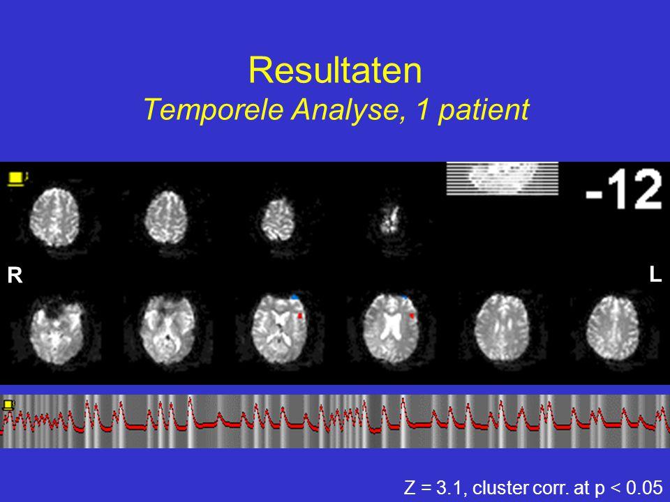 Resultaten Temporele Analyse, 1 patient