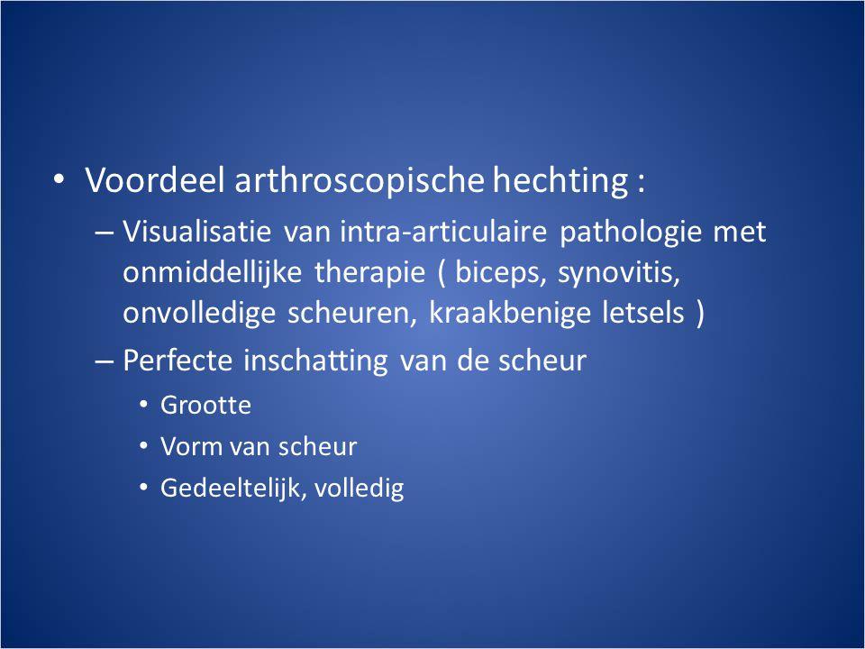 Voordeel arthroscopische hechting :