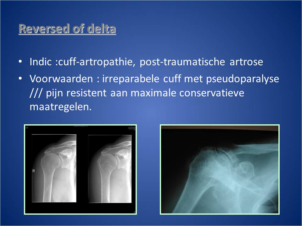 Reversed of delta Indic :cuff-artropathie, post-traumatische artrose